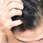 5 Tips Menghilangkan Gatal di Kulit Kepala