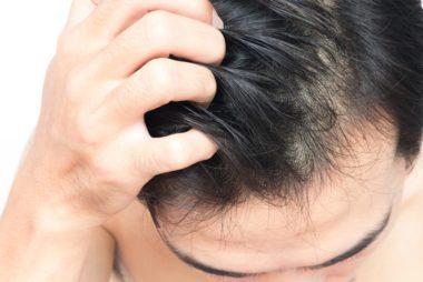 tips menghilangkan gatal kulit kepala