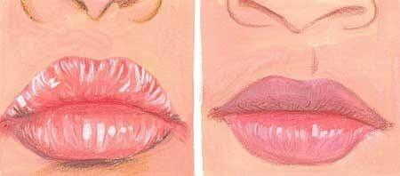 cara mengobati bibir pecah pecah